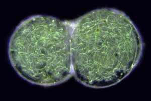 cyanobacterie2